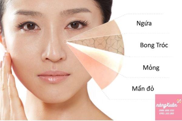 Cách chăm sóc da phù hợp với da nhạy cảm