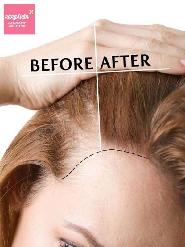 Tinh dầu kích thích mọc tóc, chữa hói đầu Kaminomoto